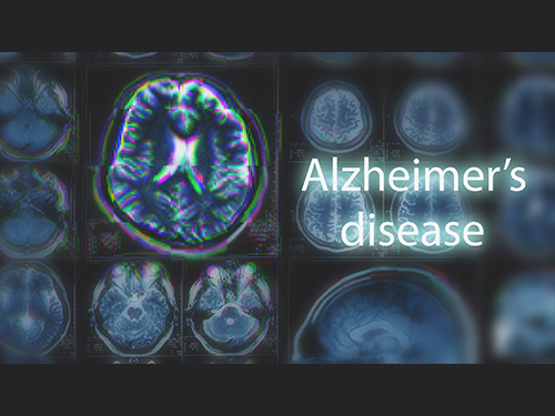 Blood-Based Multiplexed Diagnostic Sensor Helps to Accurately Detect Alzheimer's Disease 이미지