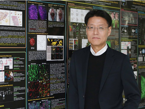 KAIST Identifies the Cause of Sepsis-induced Lung Injury 이미지
