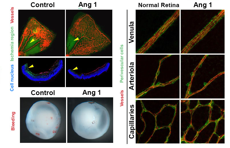 Therapy developed to induce Angiogenesis of Retina 이미지
