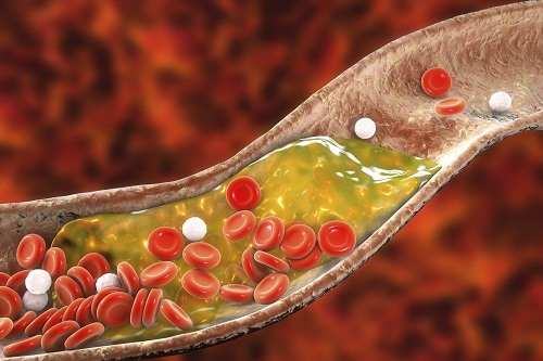 New Nanoparticle Drug Combination For Atherosclerosis 이미지