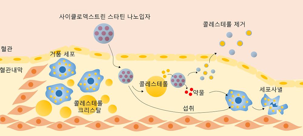 그림 2. 사이클로덱스트린-스타틴 나노입자의 시너지 치료 효과를 보여주는 모식도