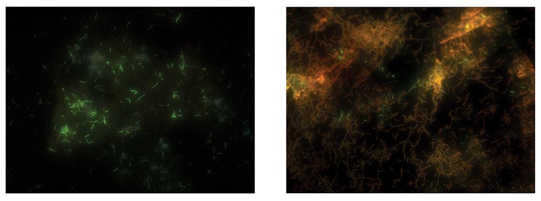 그림 3. 그래핀 액상 셀을 이용한 샘플과(좌) 일반 전자현미경 관찰한(우) 이후 형광분석법을 통한 세포의 생존성 검증. 살아 있는 세포는 녹색 형광을 보인다.
