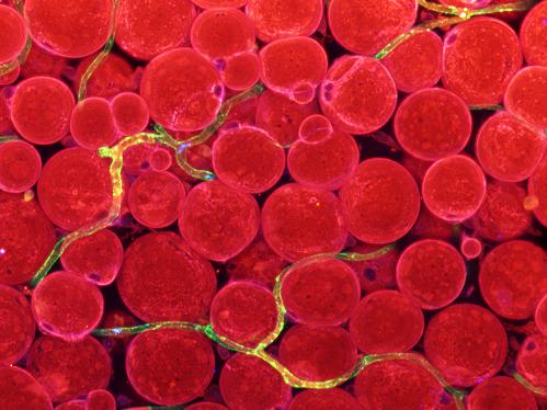 그림 3. 피하지방 혈관에서 발현되는 지방산전달인자. 피하지방 조직 내 혈관(초록색)에서 발현하는 지방산전달인자(파란색)의 이미지. 혈관에 존재하는 지방산전달인자들(초록색과 파란색이 겹쳐 노란색으로 보인다)이 혈중 지방을 지방세포(빨간색)로 전달한다는 것을 유추할 수 있다.