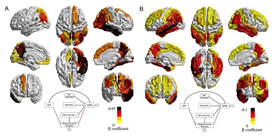 그림 2. 유전인자가 대뇌피질 위축을 일으킴을 보여주는 그림
